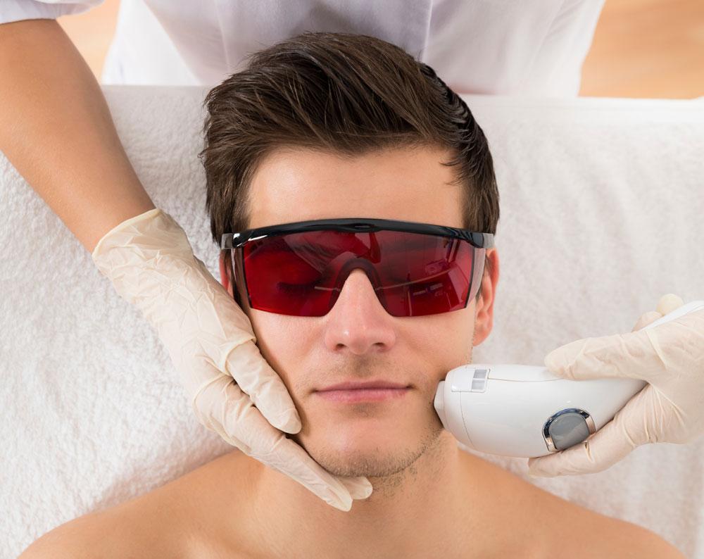 diffus rødme laserbehandling skønhedsklinik københavn