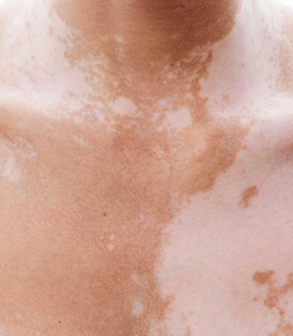 laserbehandling hudproblem skønhedsklinik