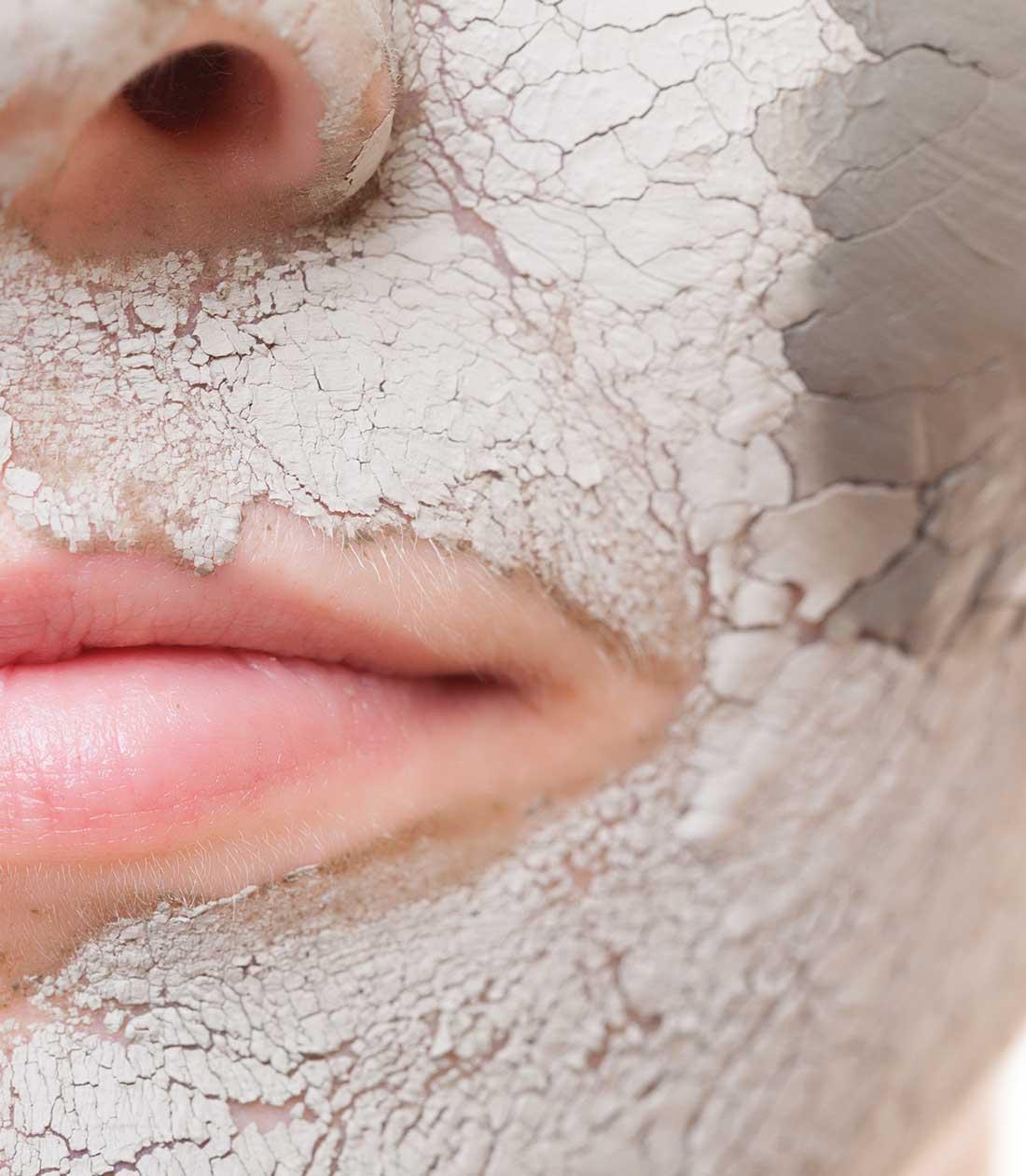 peeling behandling skønhedsklinik københavn