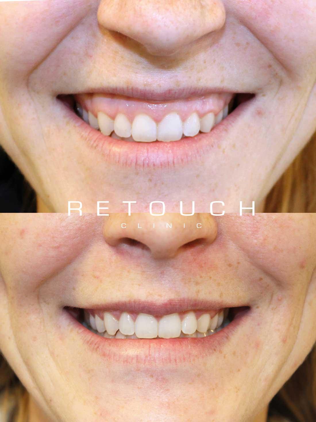 botox før og efter tandkød
