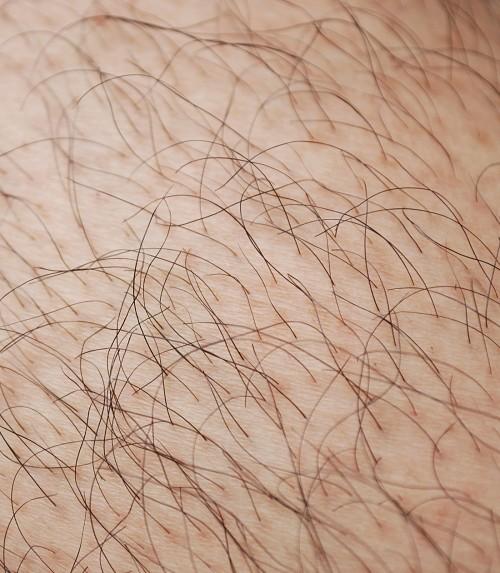 permanent hårfjerning københavn laserbehandling