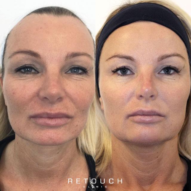 Ansigtsbehandling før og efter