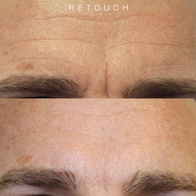 Botox behandling mænd