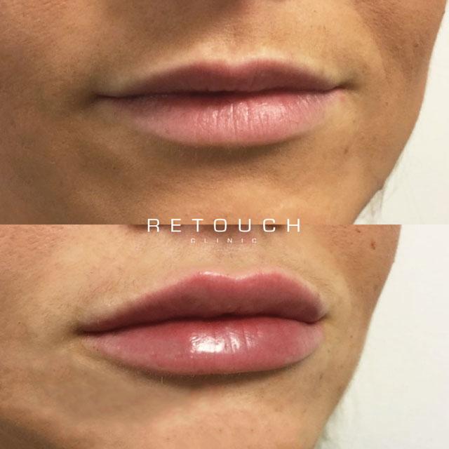 https://retouchclinic.dk/lips-by-retouch/