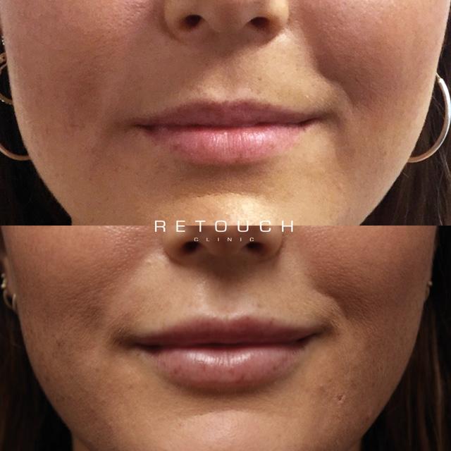 Læbefiller Retouch Clinic Før og Efter