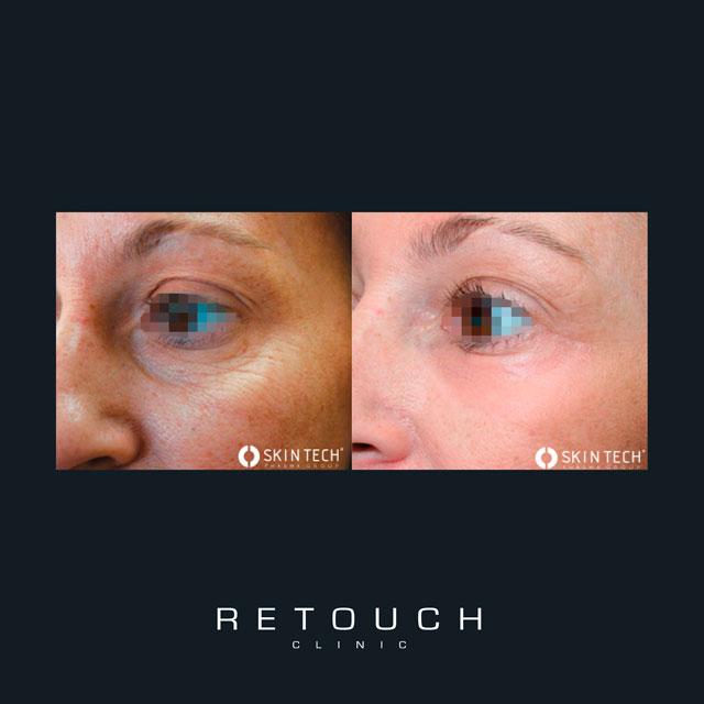 løst hud under øjnene