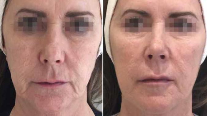 Opstramning af hud i ansigtet Profhilo