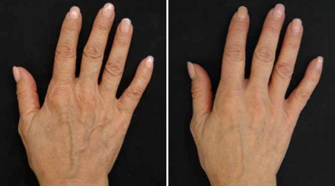 Opstramning af hud på håndrygge
