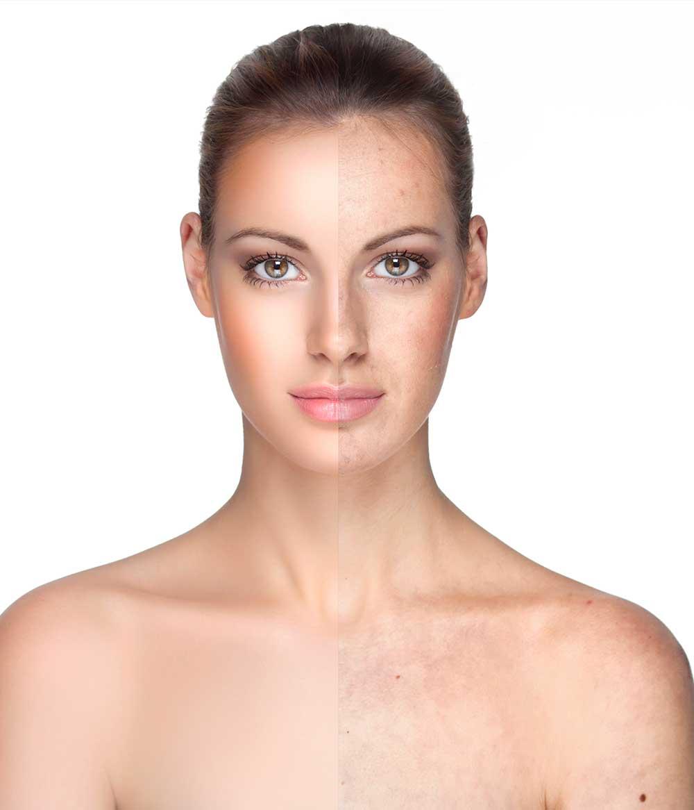 Boost din hud
