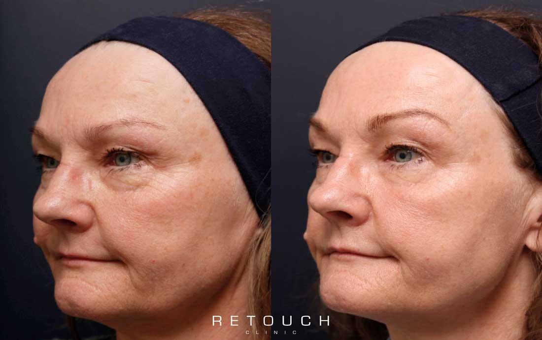 Ultracel behandling før og efter