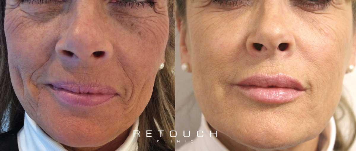 ansigtsloeft-uden-kirurgi