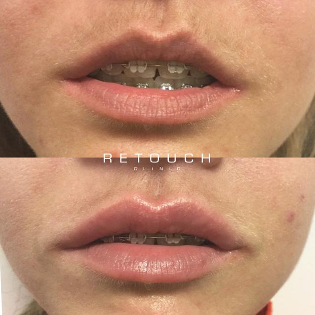 filler i læberne før og efter