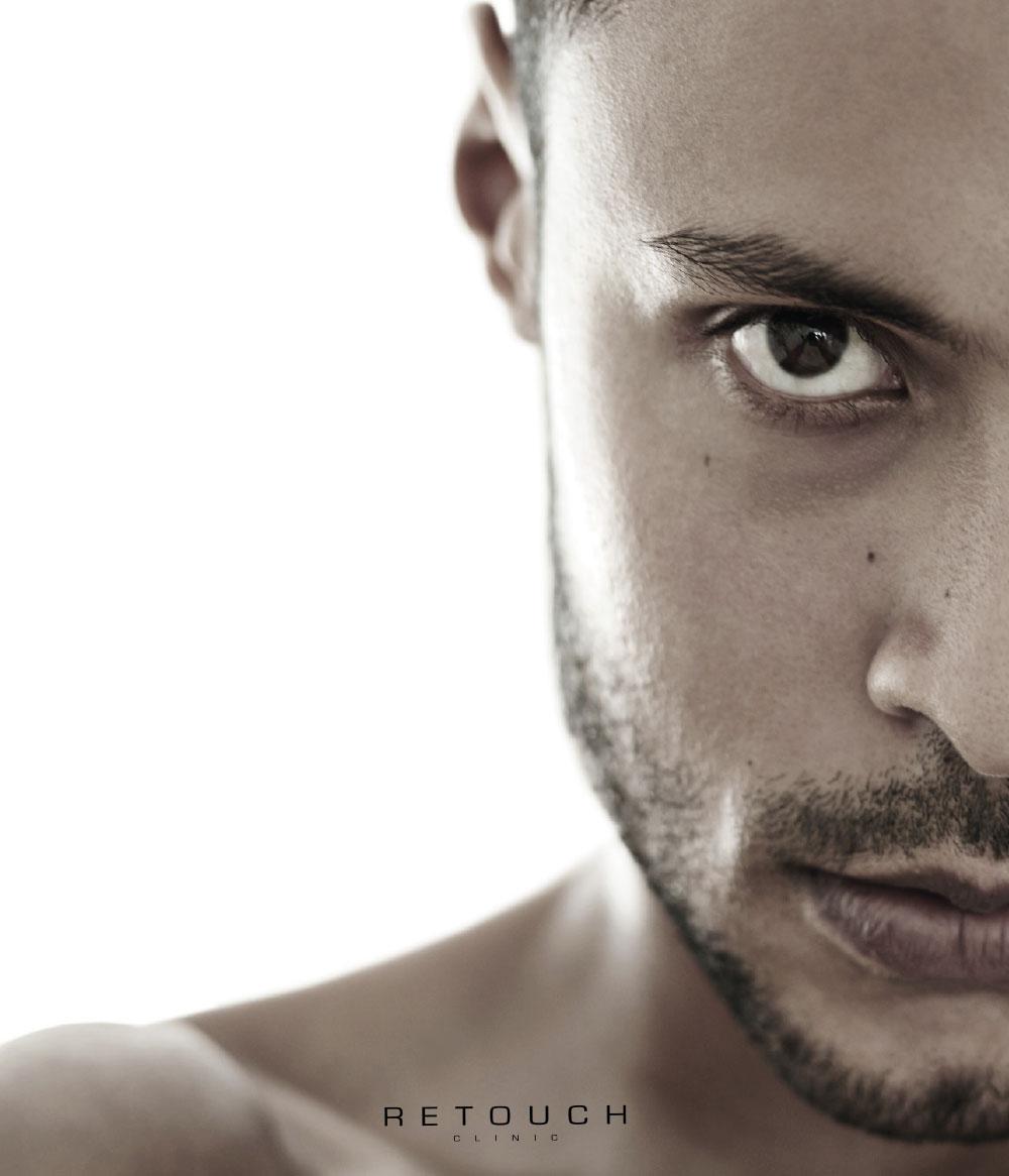 mørke render under øjnen retouch clinic